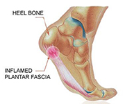 Sharp pain in arch of foot near heel