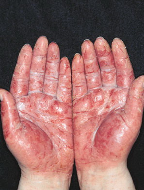 Preventing Occupational Skin Disorders In Construction